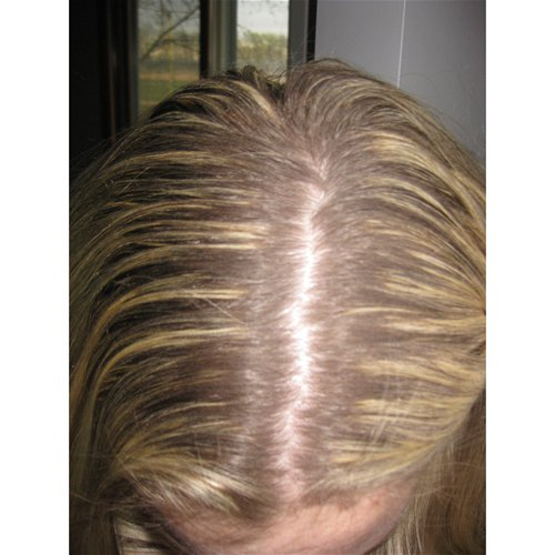 Powder applied to roots alone